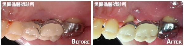 牙周病案例|邱先生